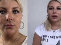 Lippen aufspritzen mit Hyaluron Video vorher nachher
